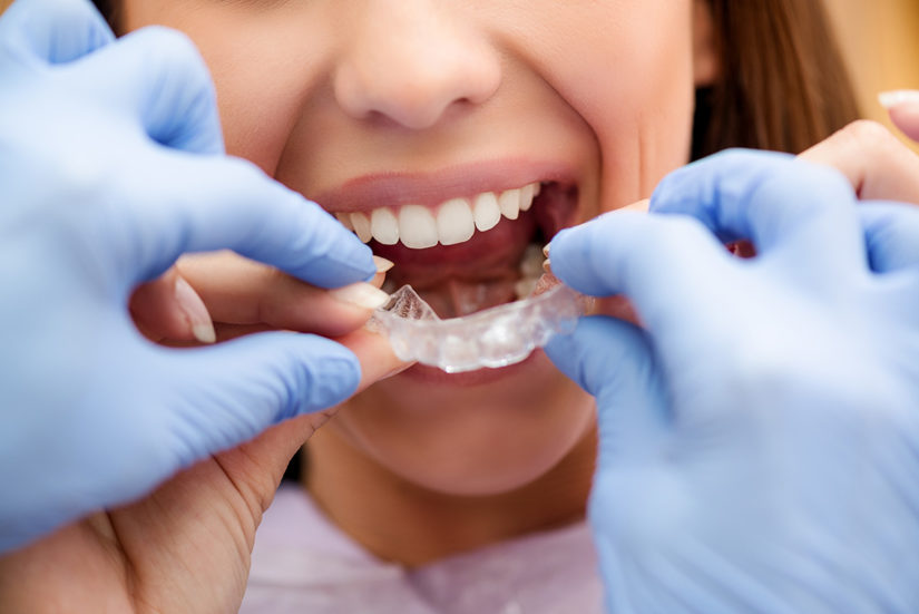 orthodontist-with-invisalign-patient-825×551